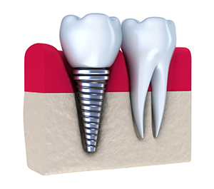 Dental Implants in Morrisville, NC